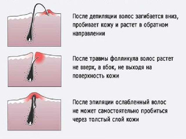 Как избавится от вросшего волоса в домашних условиях