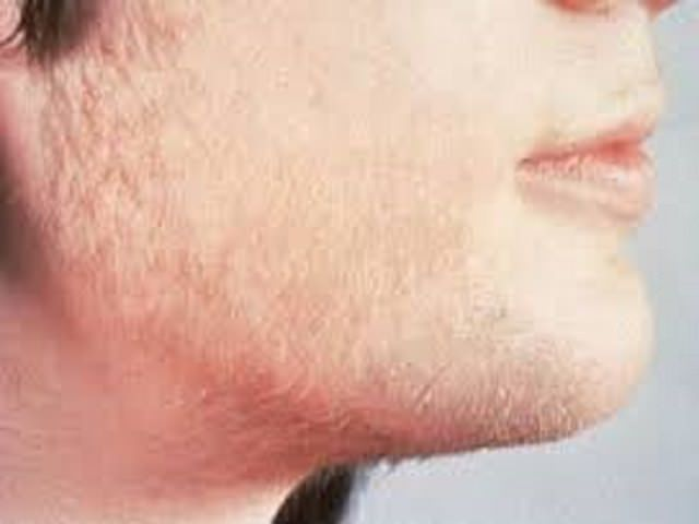 Волосы на бороде у подростка