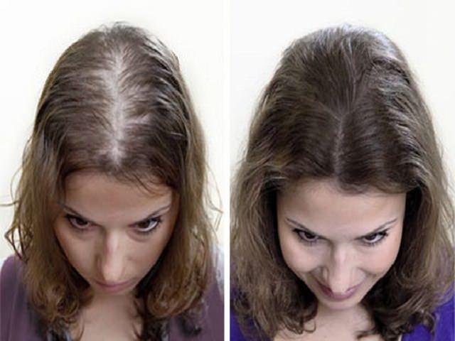 Горчичная маска для роста волос для мужчин