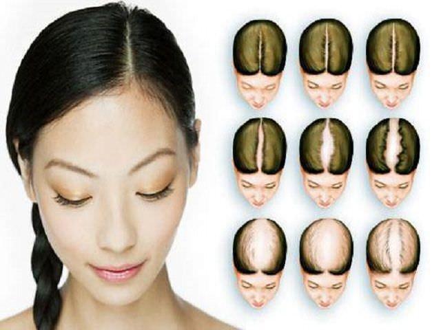 Фото лысеющей головы у Женьщин