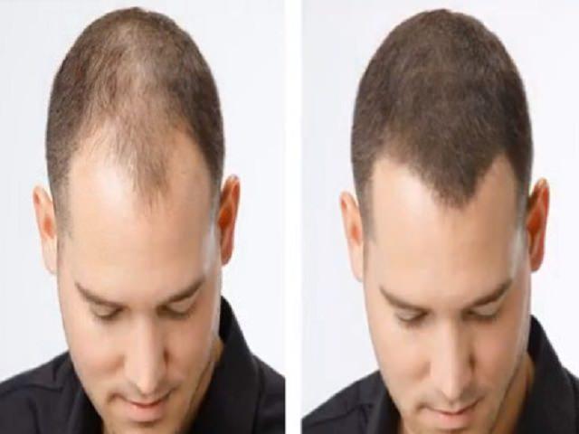 Выпадение волос из за щитовидной железы лечение