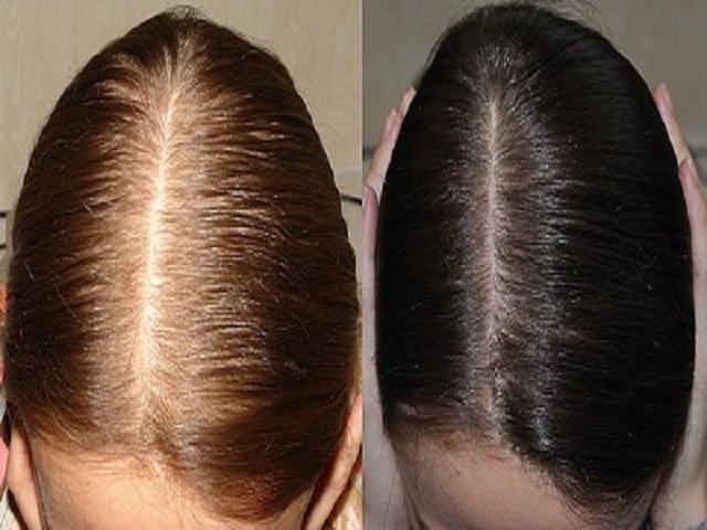 Миноксидил для волос отзывы женщин фото до и после