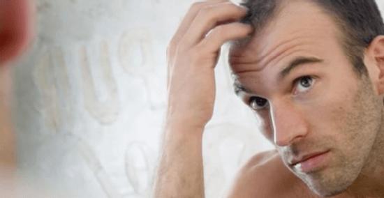 Отрастить волосы на залысинах
