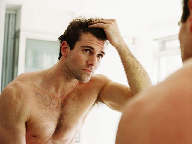 признаки заболевания алопецией у мужчины