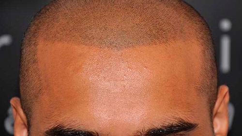 Татуаж волосистой части головы