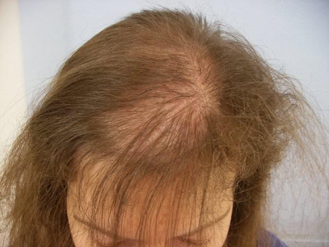 Лобковое выпадение волос