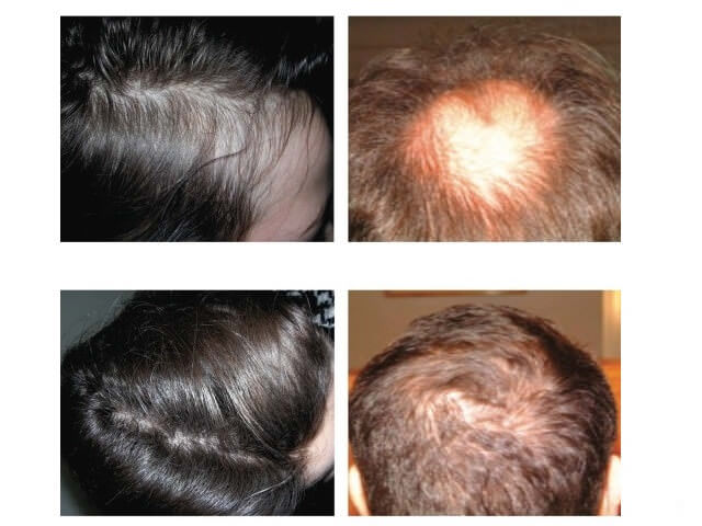 Dermaheal hl для волос
