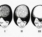 Телогеновое выпадение волос