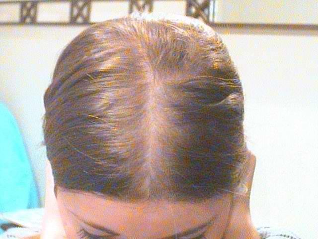 Телогеновое выпадение волос у Женщин лечение