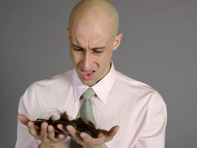 Balding Man Holding Hair --- Image by © Stock This Way/Corbis