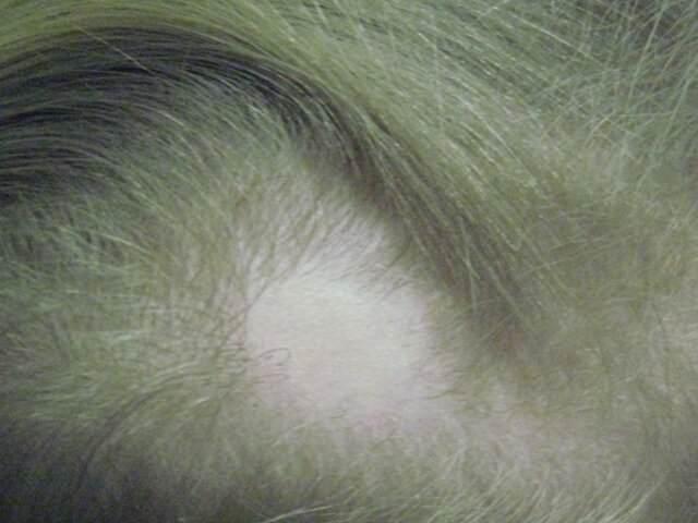 Волосы сыпятся пучками