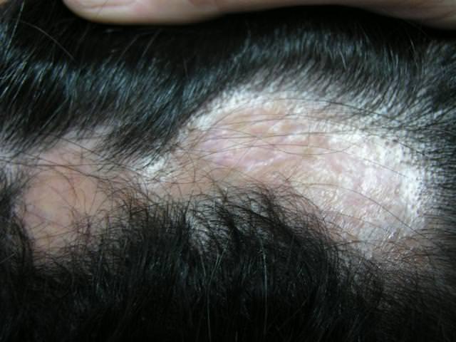 Как лечить алопецию травматически?