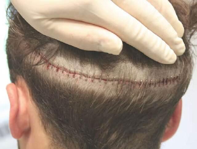 Пересадка искусственных волос цена
