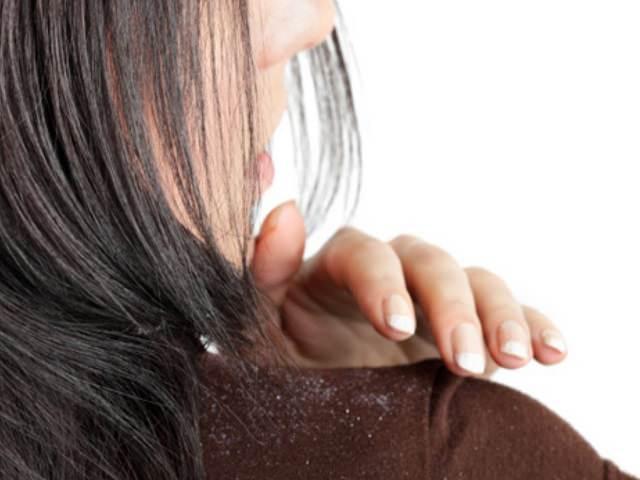 Девушка стряхивает перхоть с плеча