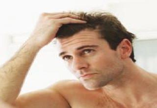 Наследственное выпадение волос у женщин