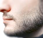 причины облысения бороды