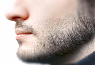 Алопеция бороды — актуальная проблема современных мужчин