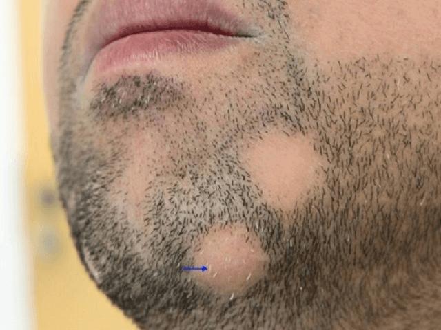 Облысение бороды у мужчины