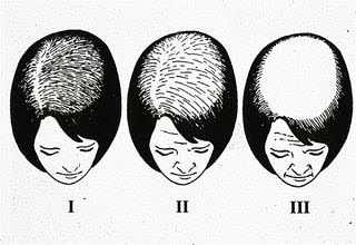 Выпадение волос и гинекология - Все о росте волос