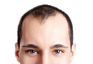 Какие существуют виды лечения облысения у мужчин