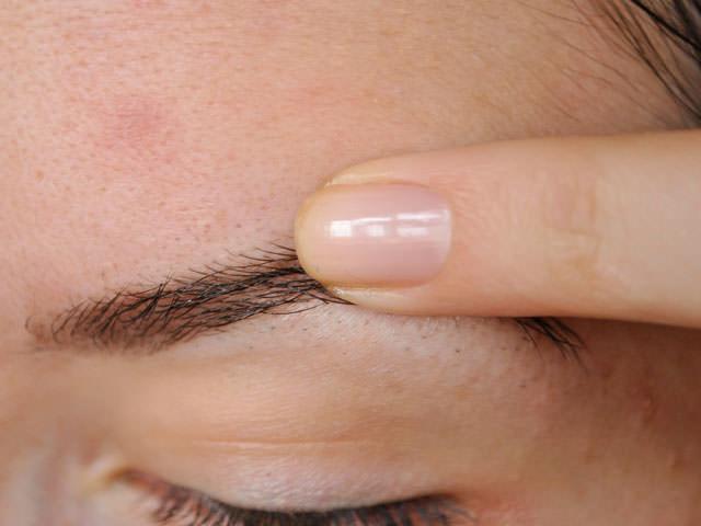 Перхоть на бровях: причины и лечение в домашних условиях