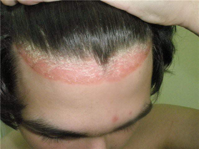 Основные симптомы и способы лечения псориаза головы